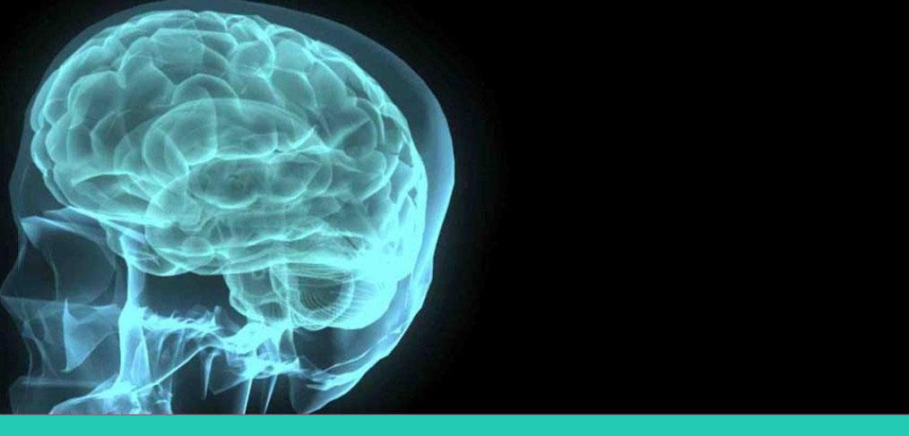 marketing-cerebro